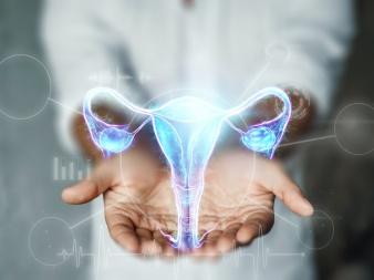 Endometriose-